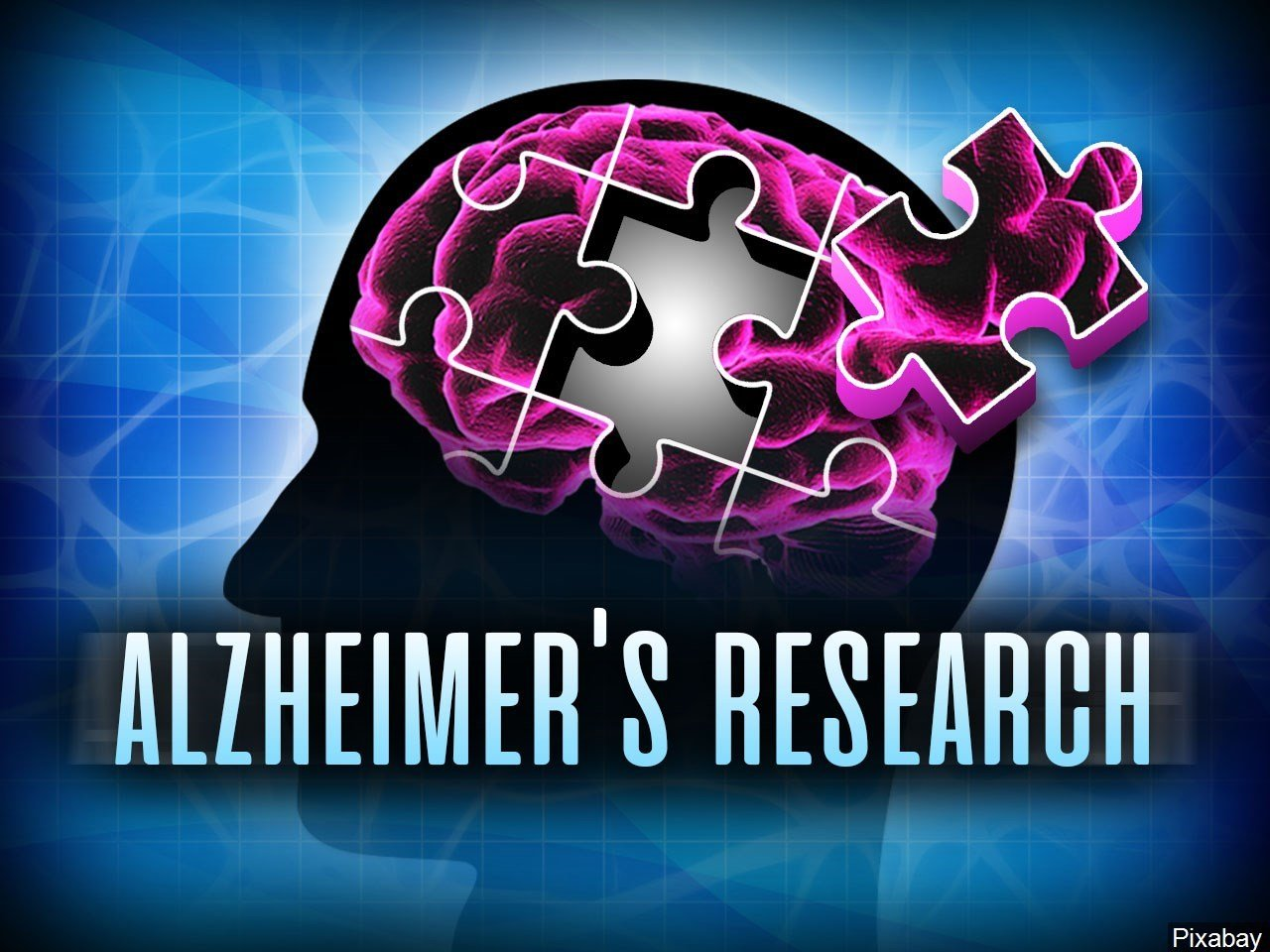 Herpes virus may have a connection to Alzheimer's disease