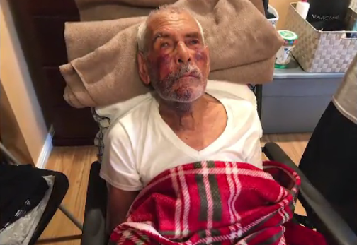 Elderly man beaten bloody thanks passer-by as arrest is made